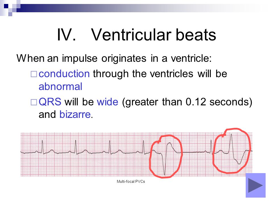 IV. Ventricular beats When an impulse originates in a ventricle:  conduction through the ventricles will be abnormal  QRS will be wide (greater than