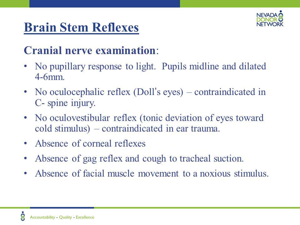 Brain Stem Reflexes Cranial nerve examination: No pupillary response to light.