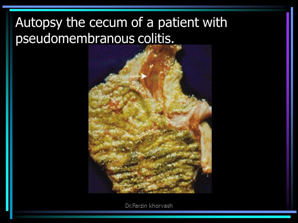Autopsy the cecum of a patient with pseudomembranous colitis. Dr.Farzin khorvash