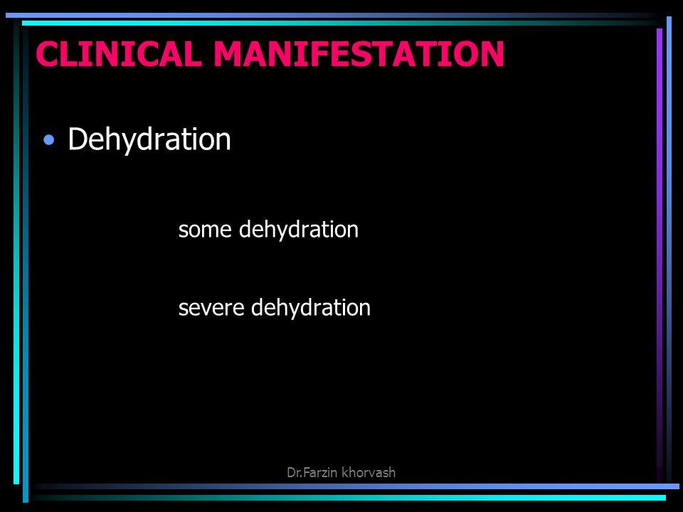 CLINICAL MANIFESTATION Dehydration some dehydration severe dehydration Dr.Farzin khorvash