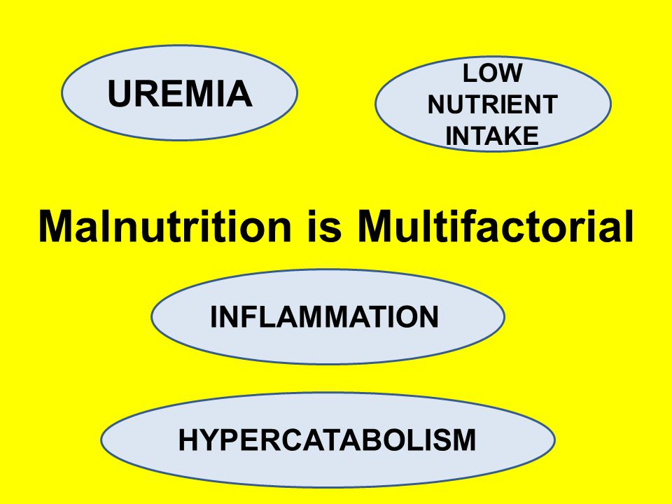 Malnutrition is Multifactorial UREMIA HYPERCATABOLISM INFLAMMATION LOW NUTRIENT INTAKE