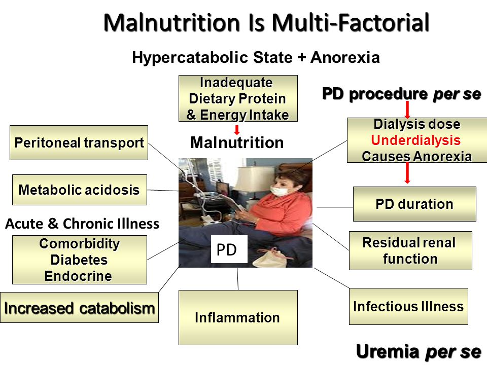 Malnutrition Is Multi-Factorial Malnutrition Is Multi-FactorialInadequate Dietary Protein & Energy Intake Dialysis dose Underdialysis Causes Anorexia