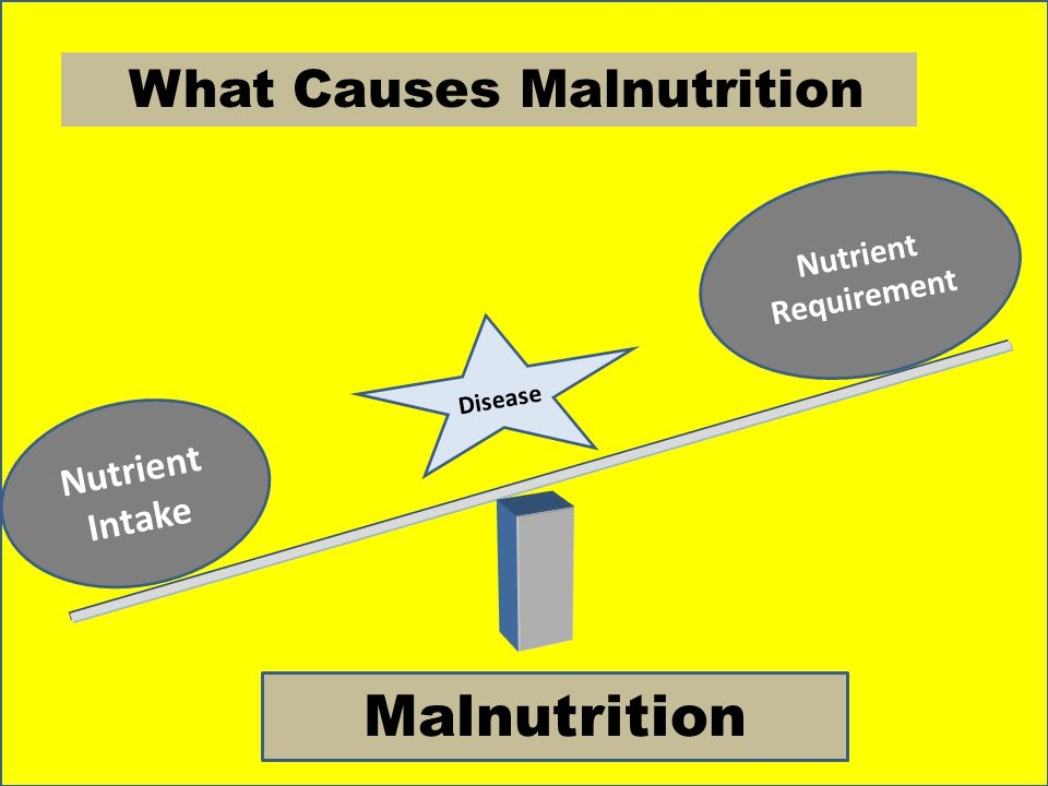 Nutrient Intake Nutrient Requirement Malnutrition What Causes Malnutrition Disease