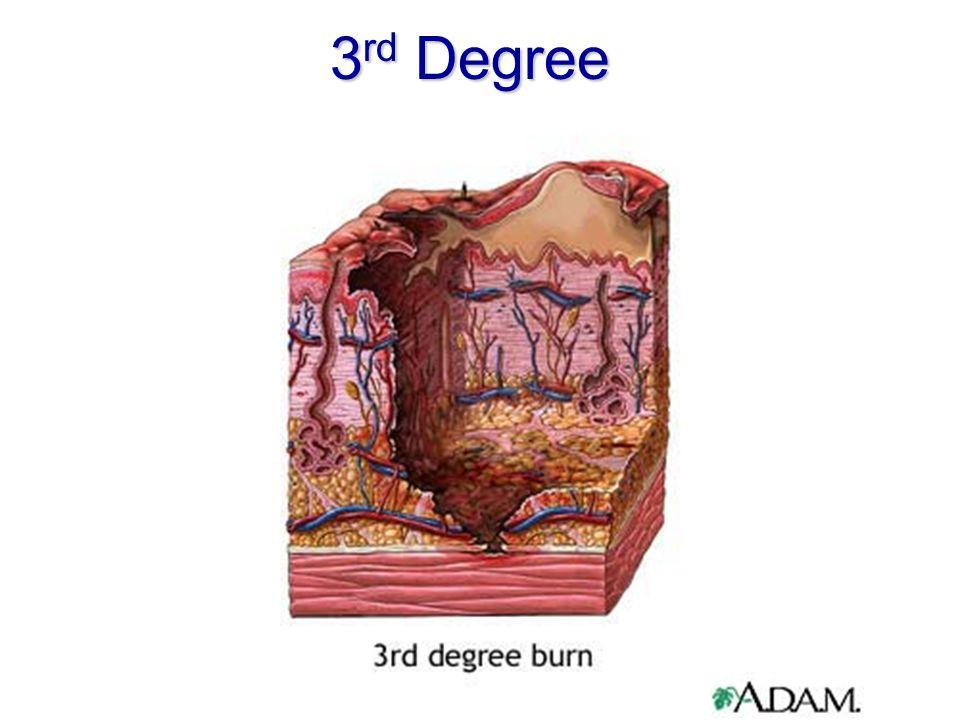 3 rd Degree