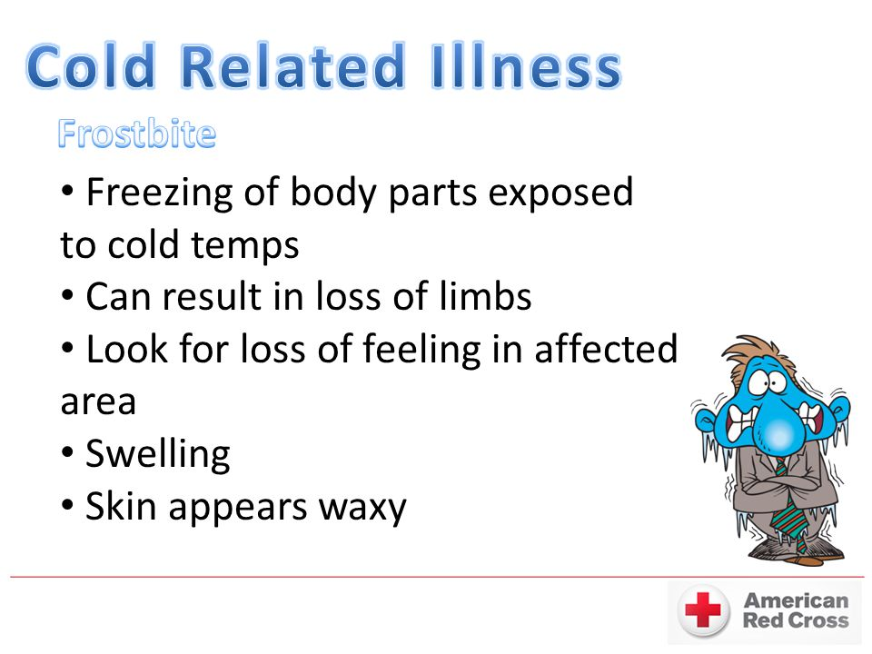 Freezing of body parts exposed to cold temps Can result in loss of limbs Look for loss of feeling in affected area Swelling Skin appears waxy
