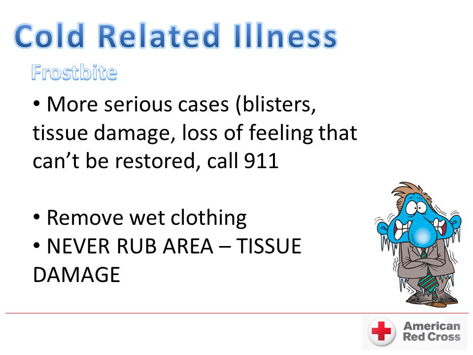 More serious cases (blisters, tissue damage, loss of feeling that can't be restored, call 911 Remove wet clothing NEVER RUB AREA – TISSUE DAMAGE