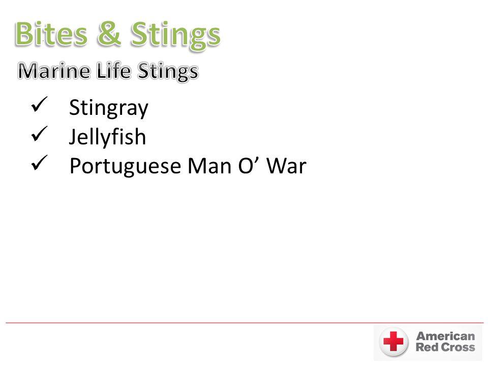 Stingray Jellyfish Portuguese Man O' War