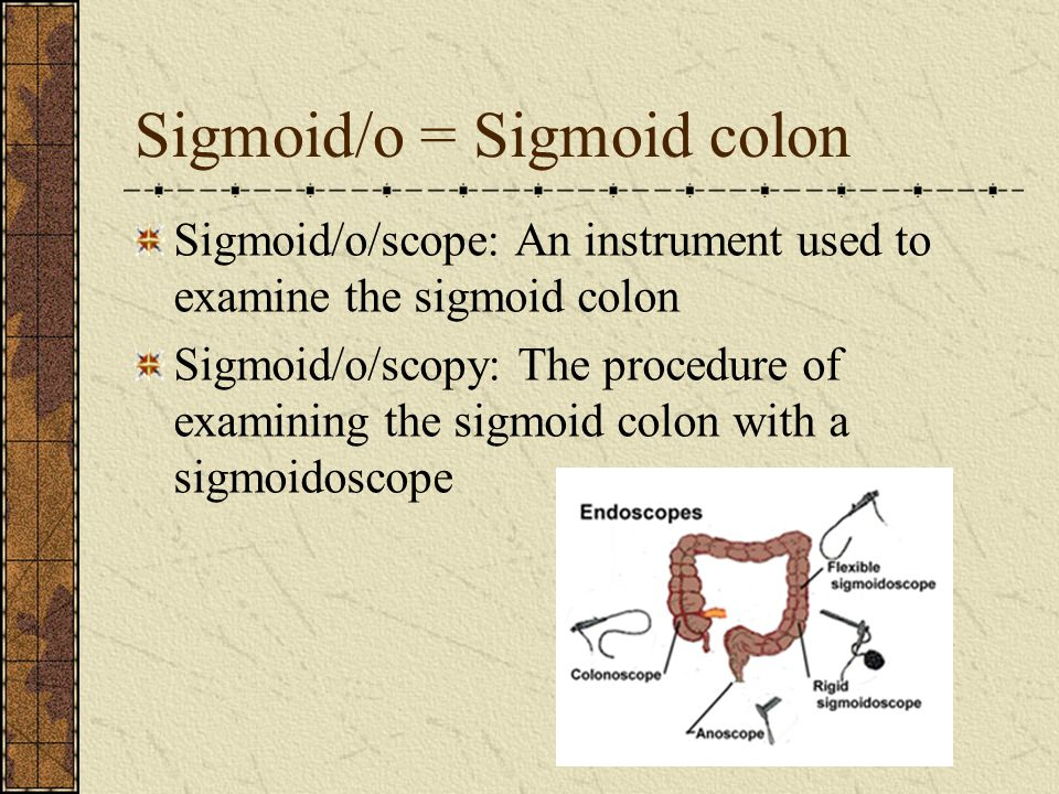 Sigmoid/o = Sigmoid colon Sigmoid/o/scope: An instrument used to examine the sigmoid colon Sigmoid/o/scopy: The procedure of examining the sigmoid colon with a sigmoidoscope