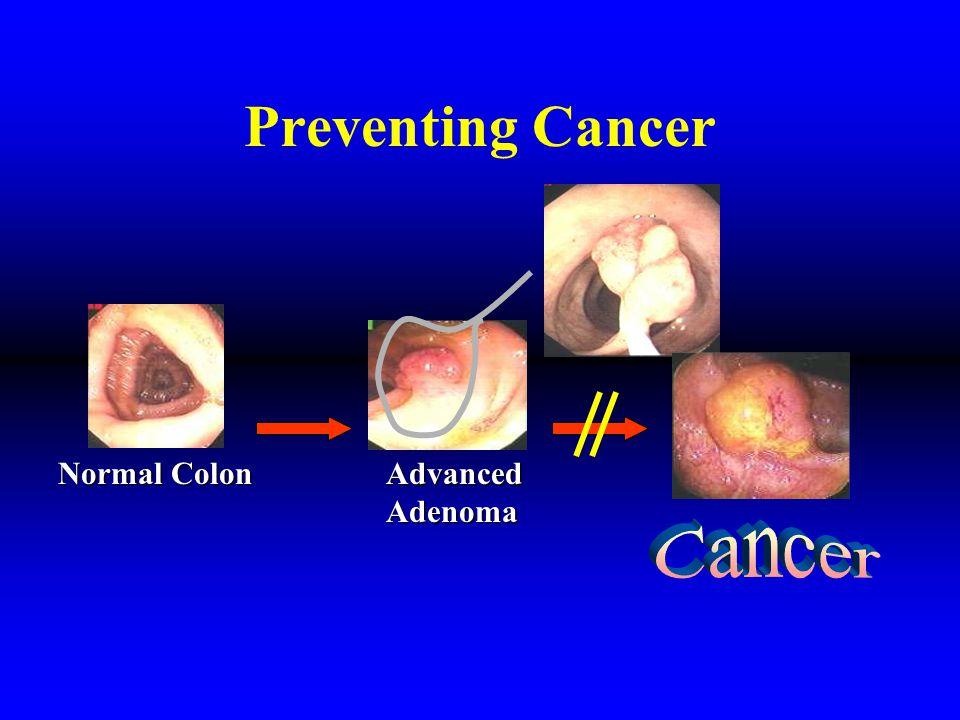 Raising the bar MD ColonCancerDetection Colon Cancer Prevention Prevention