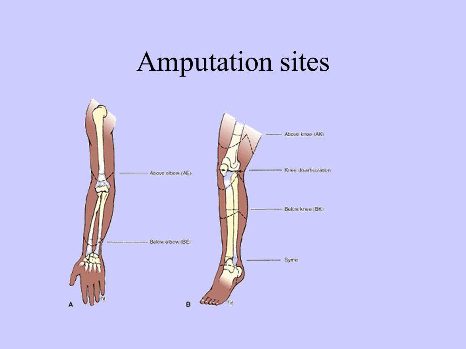 Amputation sites