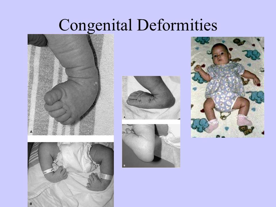 Congenital Deformities