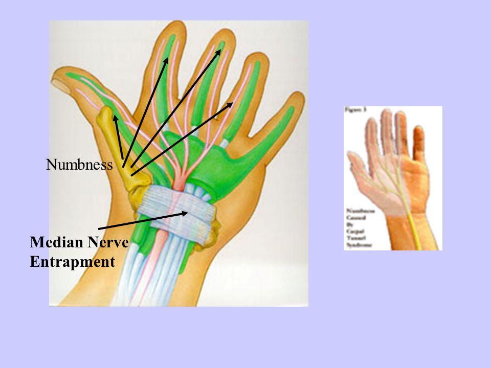 Median Nerve Entrapment Numbness