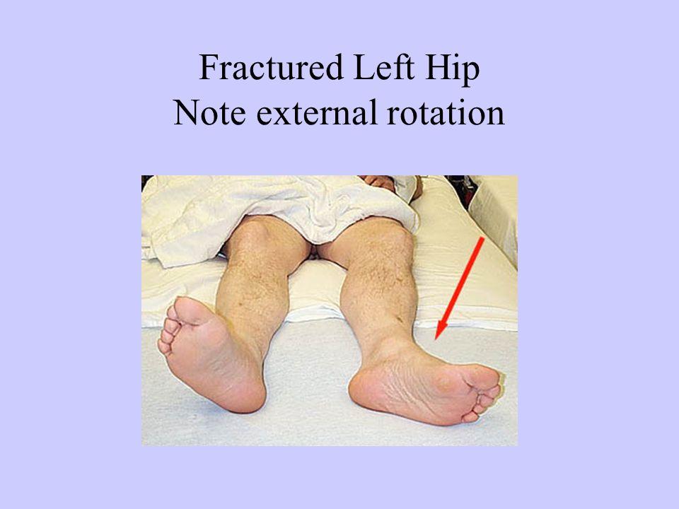 Fractured Left Hip Note external rotation