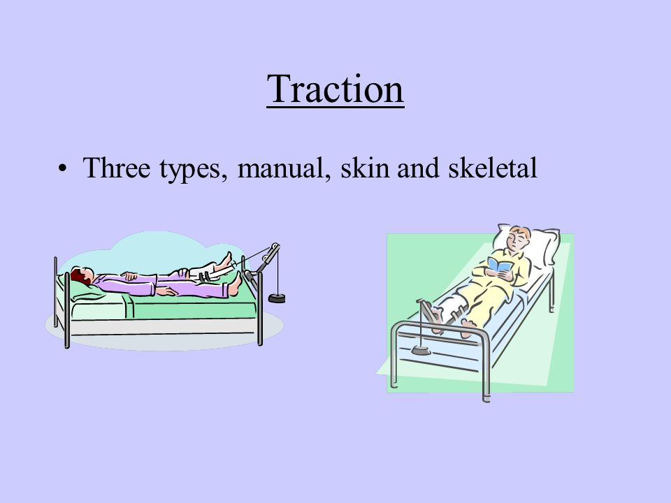 Traction Three types, manual, skin and skeletal