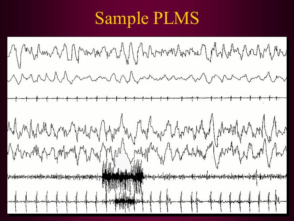 Sample PLMS LAT RAT