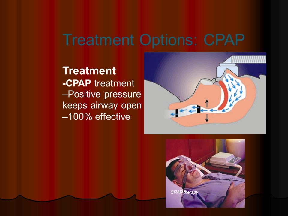Treatment -CPAP treatment –Positive pressure keeps airway open –100% effective CPAP therapy Treatment Options: CPAP