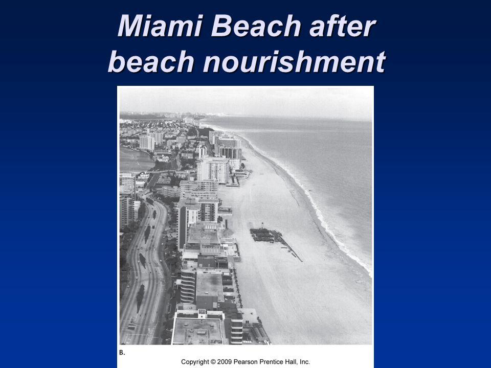Miami Beach after beach nourishment