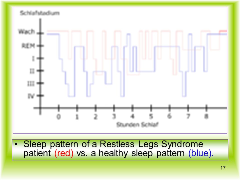 Sleep pattern of a Restless Legs Syndrome patient (red) vs. a healthy sleep pattern (blue). 17