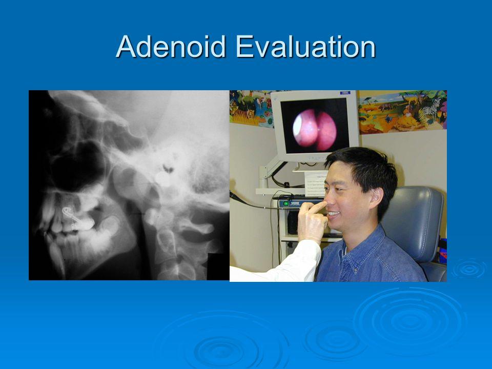 Adenoid Evaluation