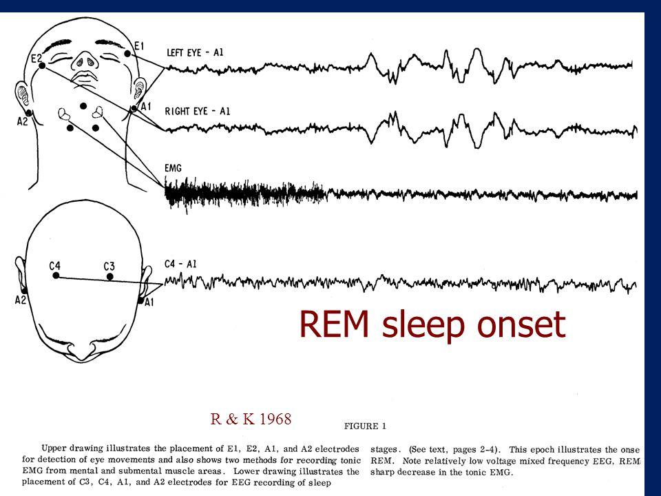 "REM Sleep Rapid Eye Movements Muscle atonia (paralysis) Dream recall 90 minute latency ""Paradoxical Sleep"" – EEG mimics wakefulness Breathing irregula"