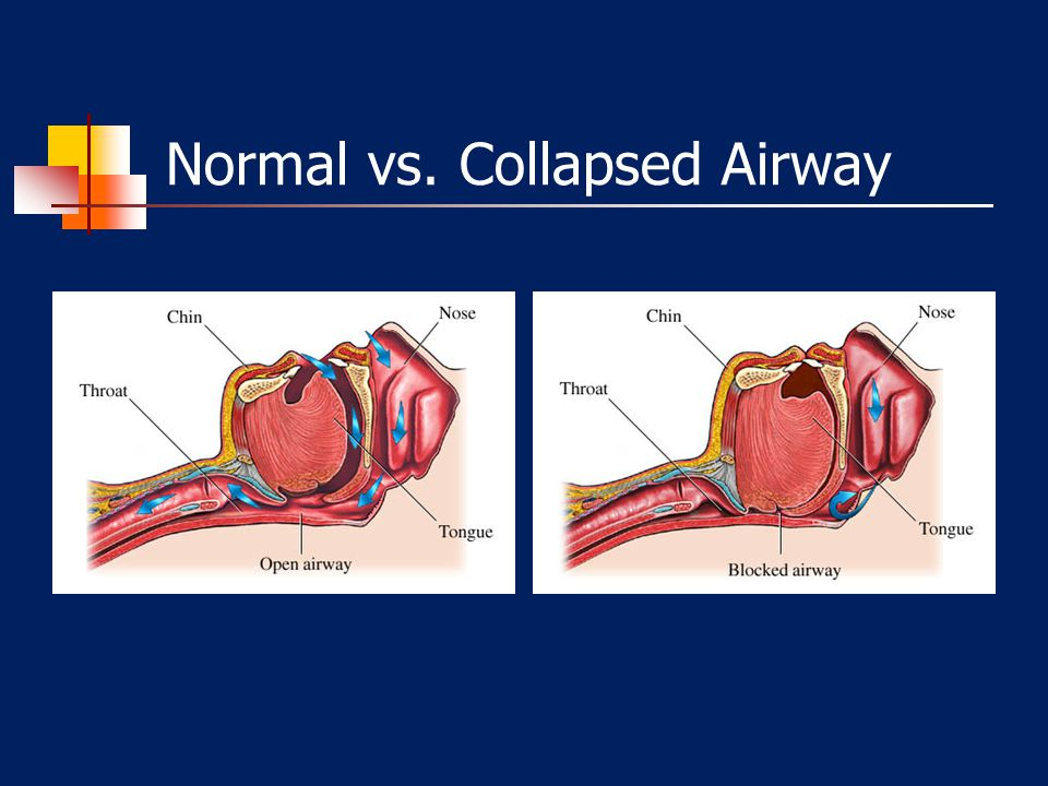 OBSTRUCTIVE SLEEP APNEA (OSA) Causes ▪ Narrow Upper Airway ▪ Elevated BMI ▪ Family Hx Exacerbated by: ▪ Medications – BDZs, Opioids ▪ Alcohol Consumpt