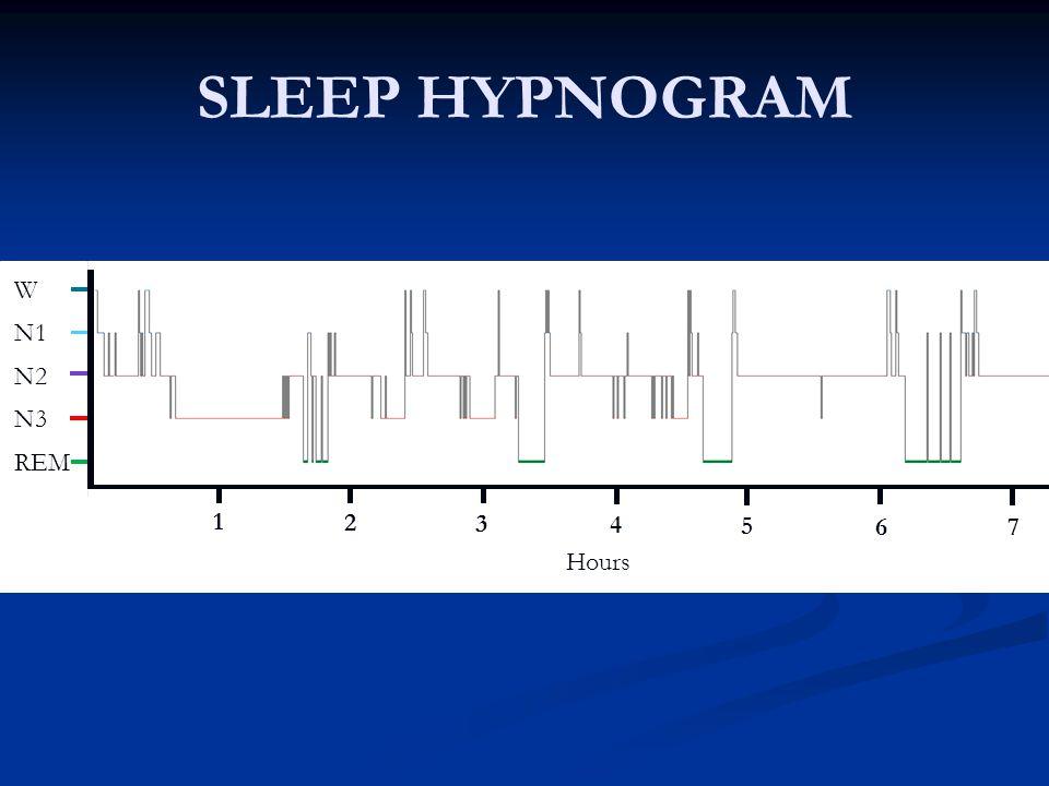 SLEEP HYPNOGRAM REM N3 N2 N1 W 1 Hours 1 2 3 4 5 67