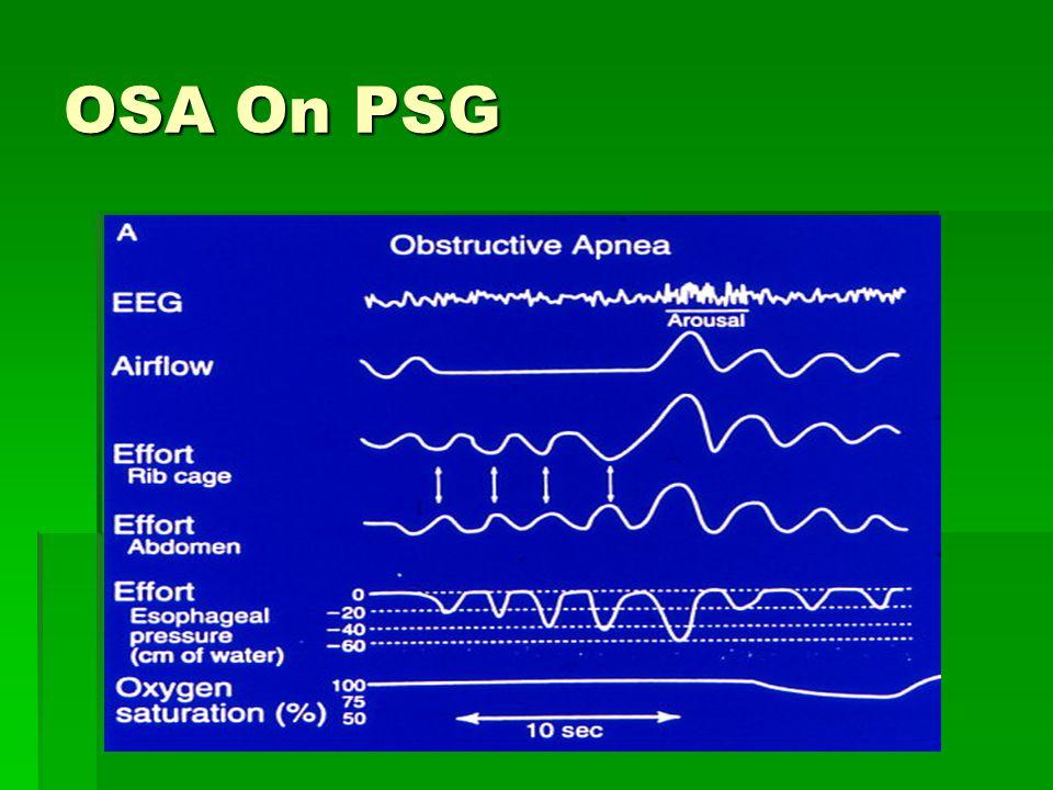 OSA On PSG