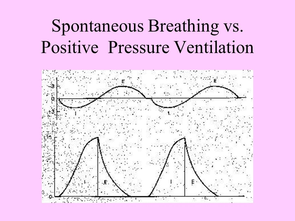 Volume-cycled Ventilation Delivers a preset volume of gas with each machine breath—airway pressures increase in response to the delivered breath Airwa