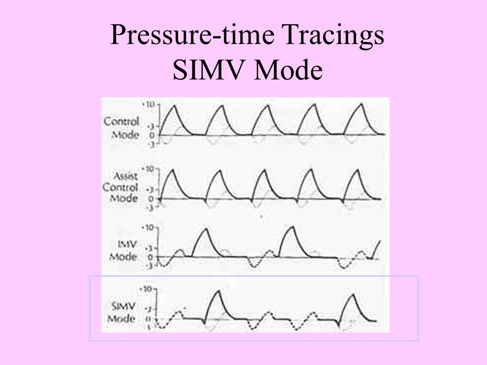Synchronized Intermittent Mandatory Ventilation (SIMV) Delivers preset number of fixed-volume breaths Patient can breathe spontaneously between breath