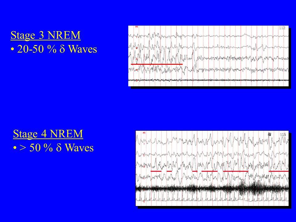 Stage 3 NREM 20-50 %  Waves Stage 4 NREM > 50 %  Waves