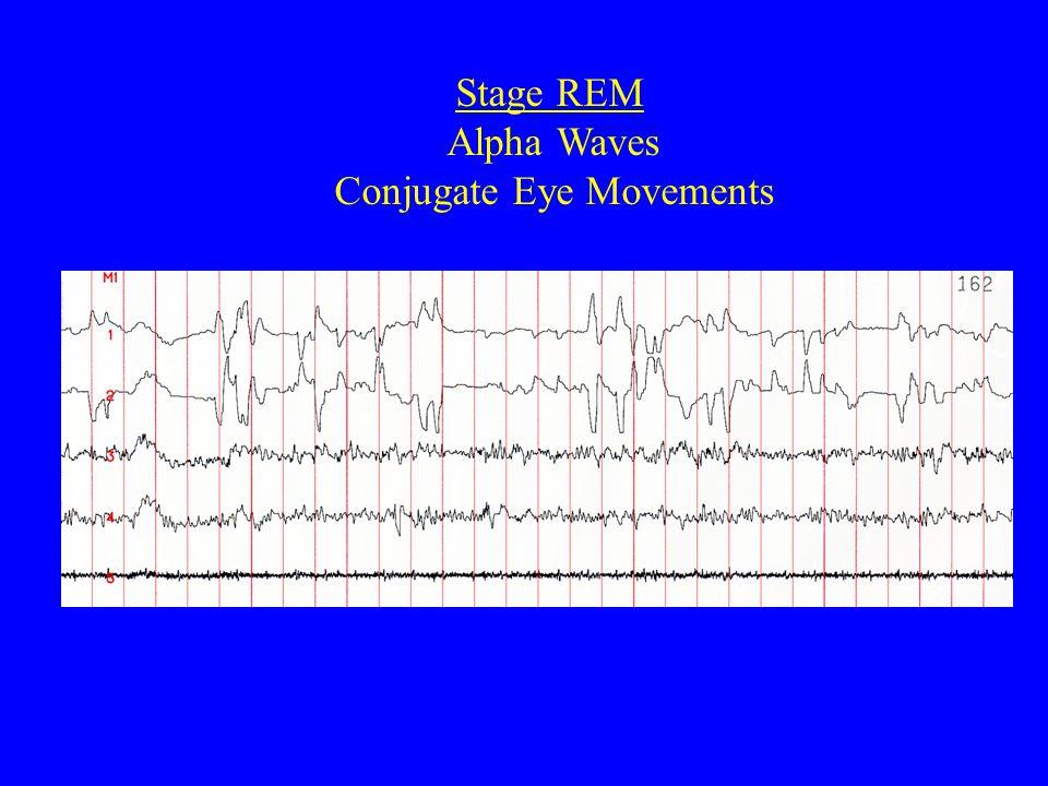 Stage REM Alpha Waves Conjugate Eye Movements
