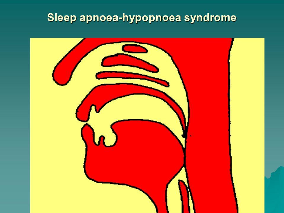 Sleep apnoea-hypopnoea syndrome