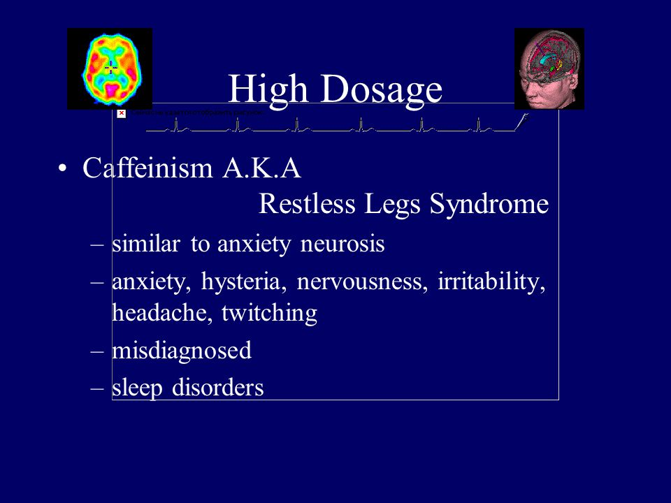 High Dosage Caffeinism A.K.A Restless Legs Syndrome –similar to anxiety neurosis –anxiety, hysteria, nervousness, irritability, headache, twitching –misdiagnosed –sleep disorders
