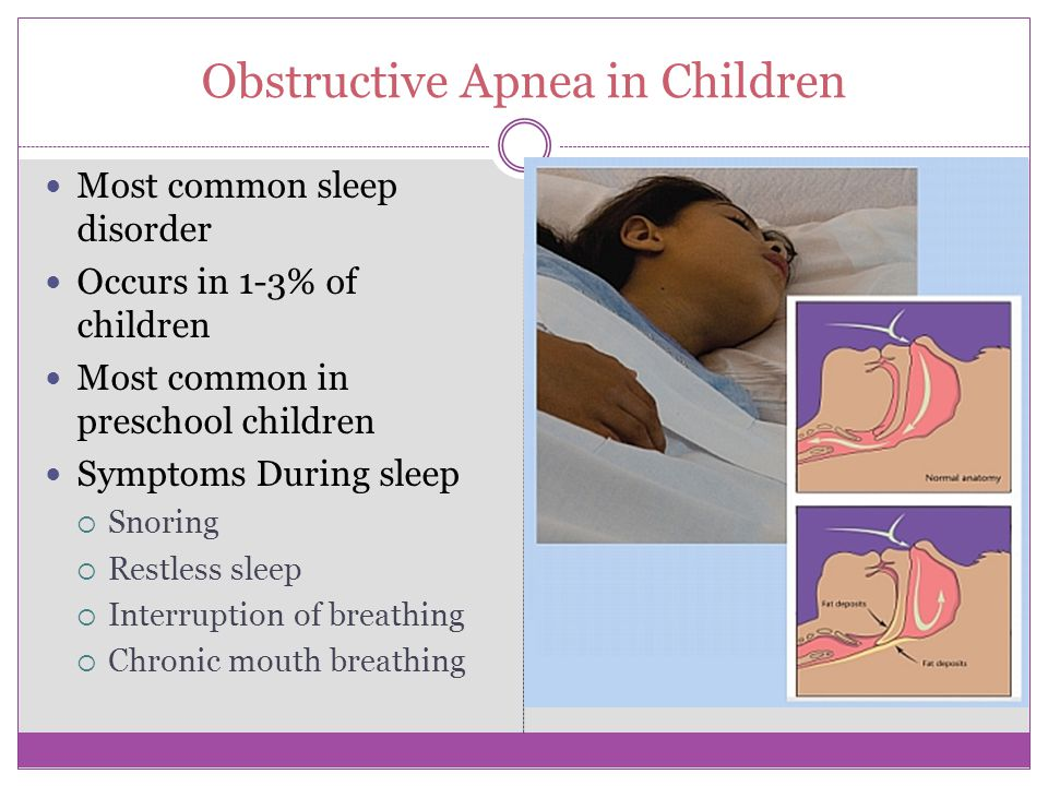 Common Disorders in Children Dyssomnias-disturbance in the amount, timing or quality of sleep  Insomnia  Sleep apnea, 1-3%  Restless leg syndrome  Narcolepsy-rare  Periodic limb movement Parasomnias-disorders with abnormal behavior or physiological events, interference with sleep stage transition  Arousal disorders  Night terrors,4-8 yr old  Sleep walking, 6-12 yr olds Up to 40% sleep walk  Sleep wake transition  Sleep talking  Nightmares, 3-5%  Teeth grinding or bruxism  Bedwetting, 15%, boys, age 3+