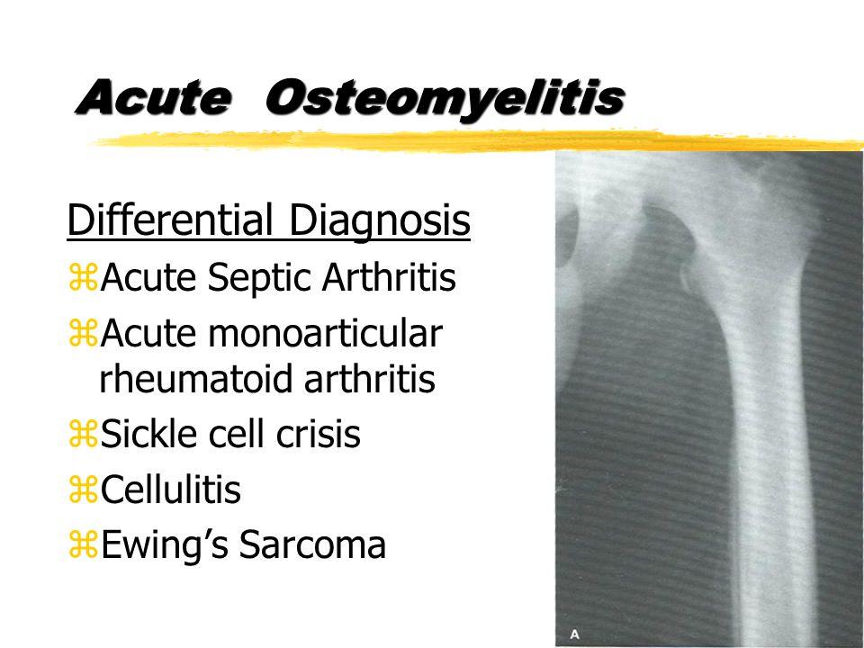 Differential Diagnosis zAcute Septic Arthritis zAcute monoarticular rheumatoid arthritis zSickle cell crisis zCellulitis zEwing's Sarcoma