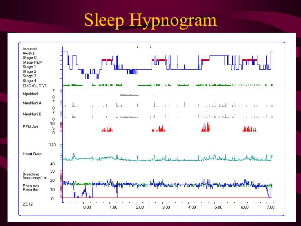 Important Sleep Parameters on PSG Sleep stages (percentage) Sleep efficiency Apnea Hypopnea index (AHI), Respiratory Disturbance Index (RDI), paradoxi
