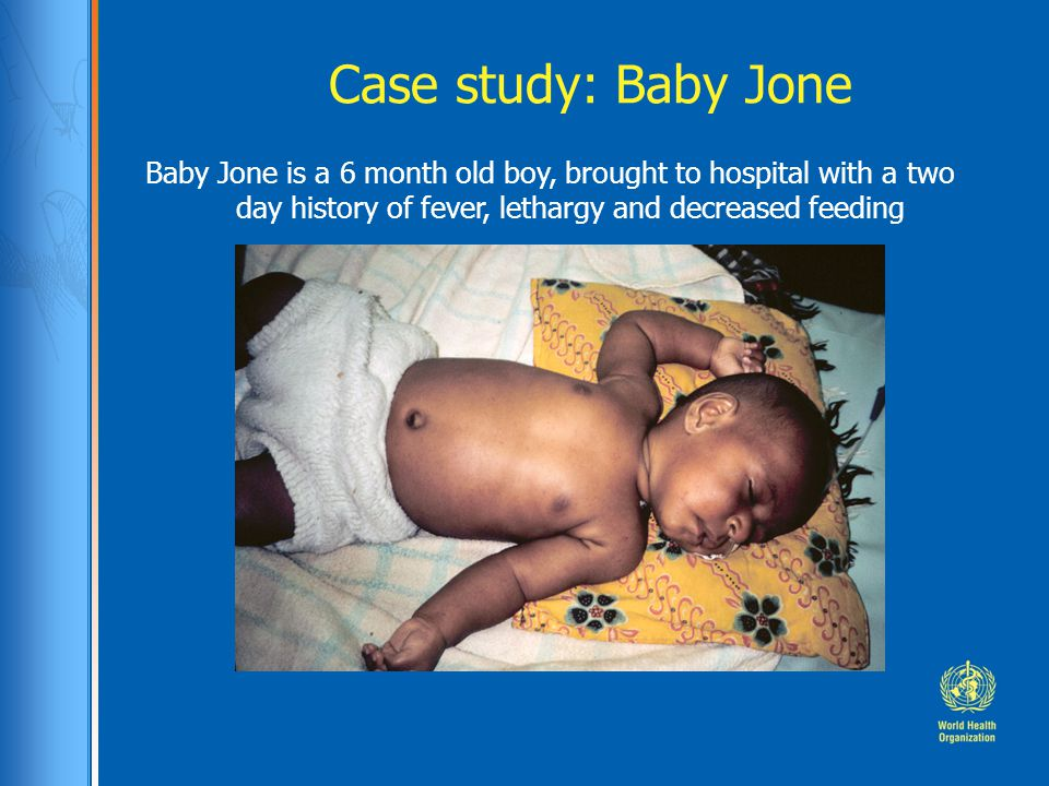 Case study: Baby Jone Baby Jone is a 6 month old boy, brought to hospital with a two day history of fever, lethargy and decreased feeding