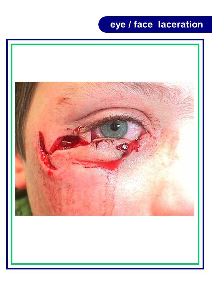 eye / face laceration