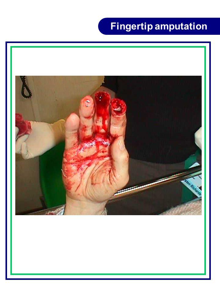 Fingertip amputation