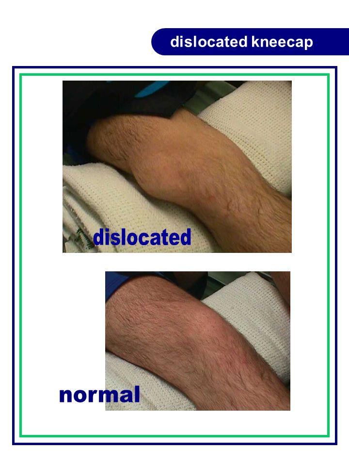dislocated kneecap