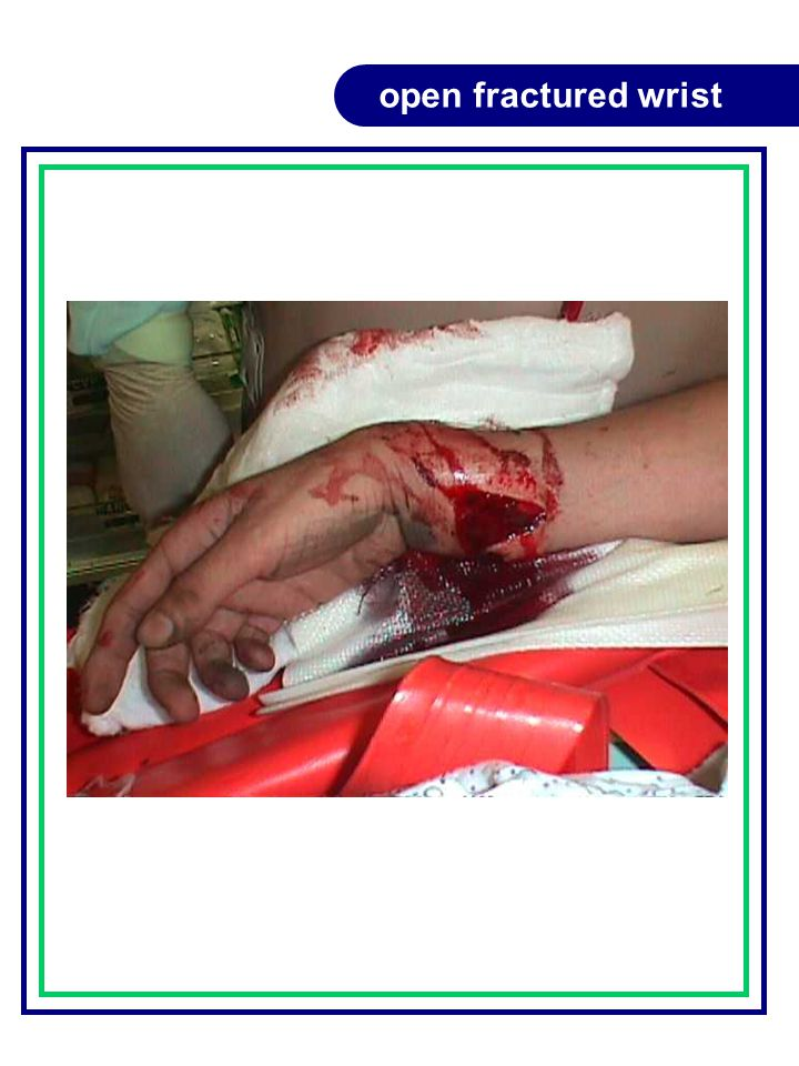 open fractured wrist
