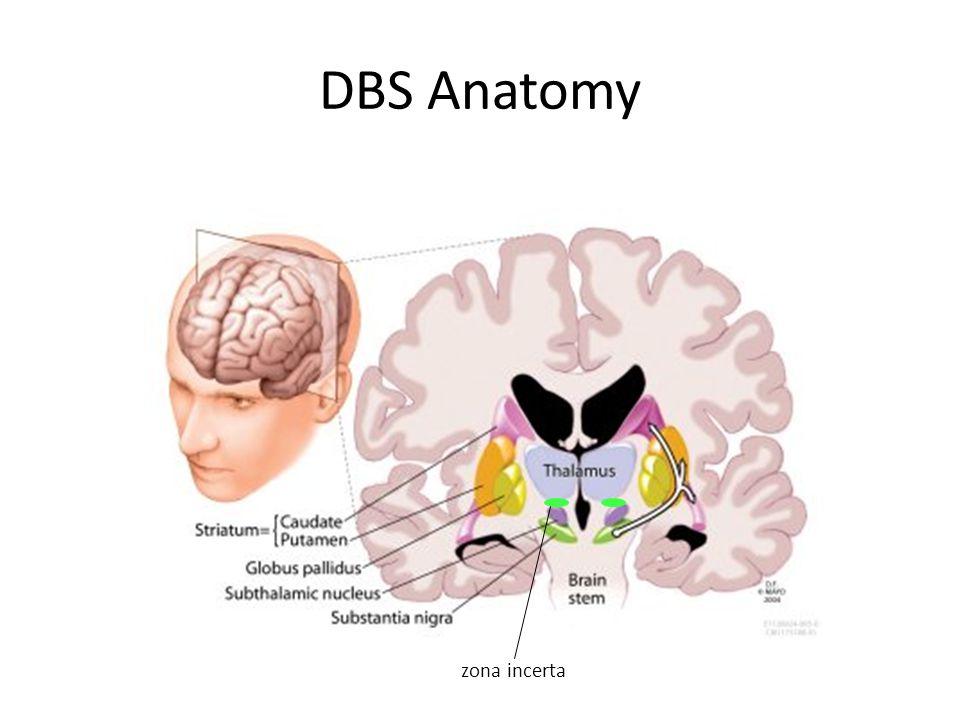 DBS Anatomy zona incerta
