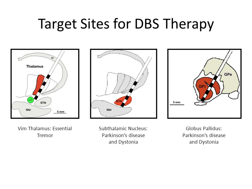 Target Sites for DBS Therapy Vim Thalamus: Essential Tremor Subthalamic Nucleus: Parkinson's disease and Dystonia Globus Pallidus: Parkinson's disease and Dystonia cZI