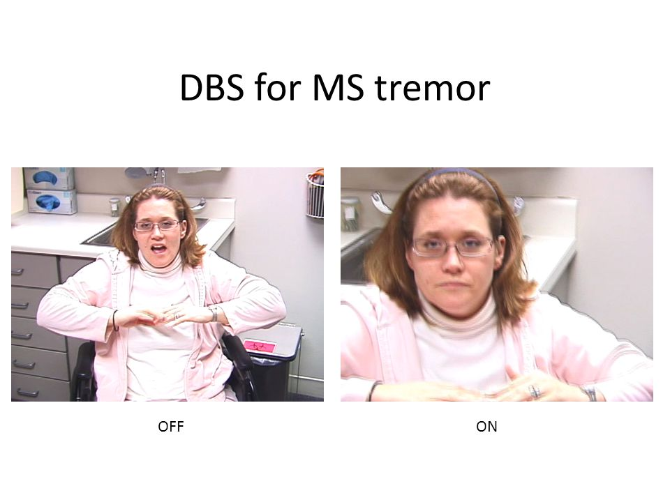 DBS for MS tremor OFFON