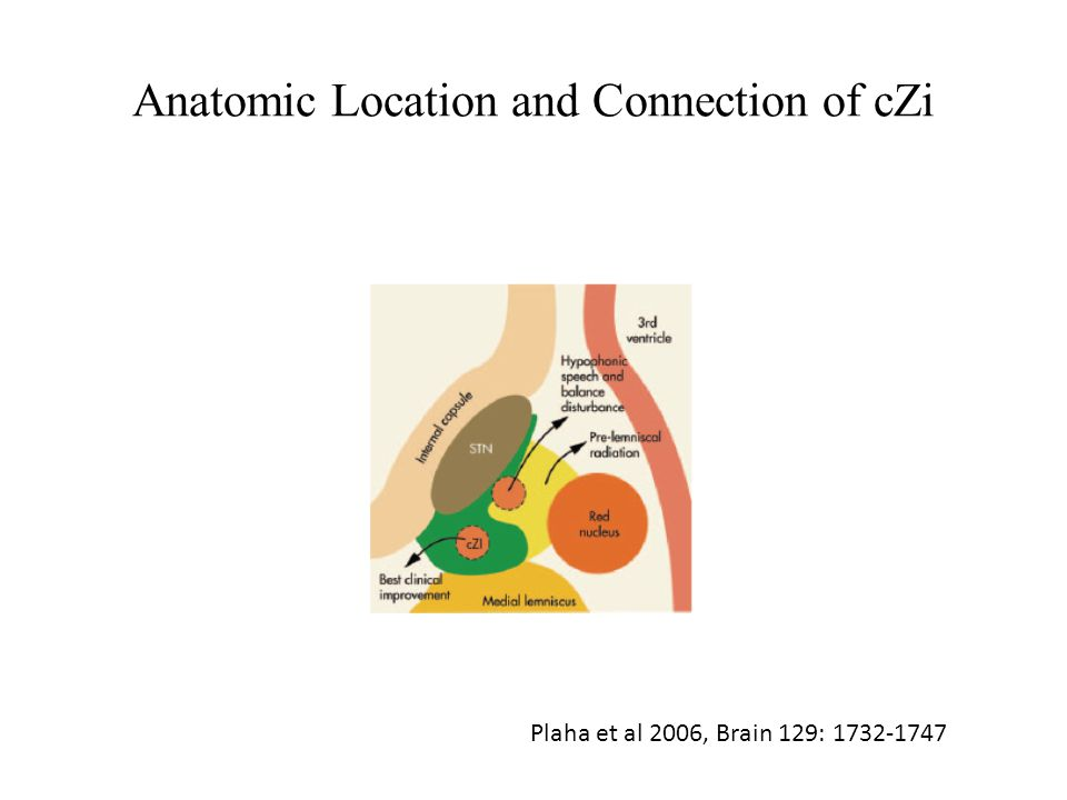 Anatomic Location and Connection of cZi Plaha et al 2006, Brain 129: 1732-1747