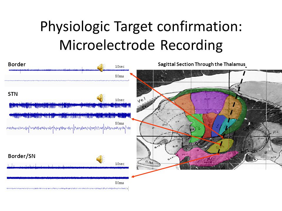 Physiologic Target confirmation: Microelectrode Recording STN Border/SN 10sec 80ms Sagittal Section Through the Thalamus Border