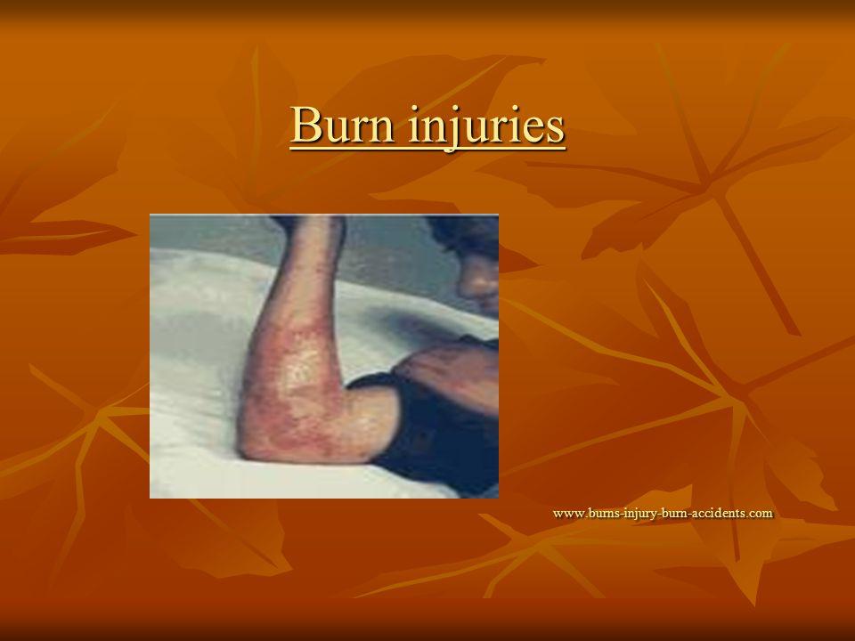 Burn injuries www.burns-injury-burn-accidents.com