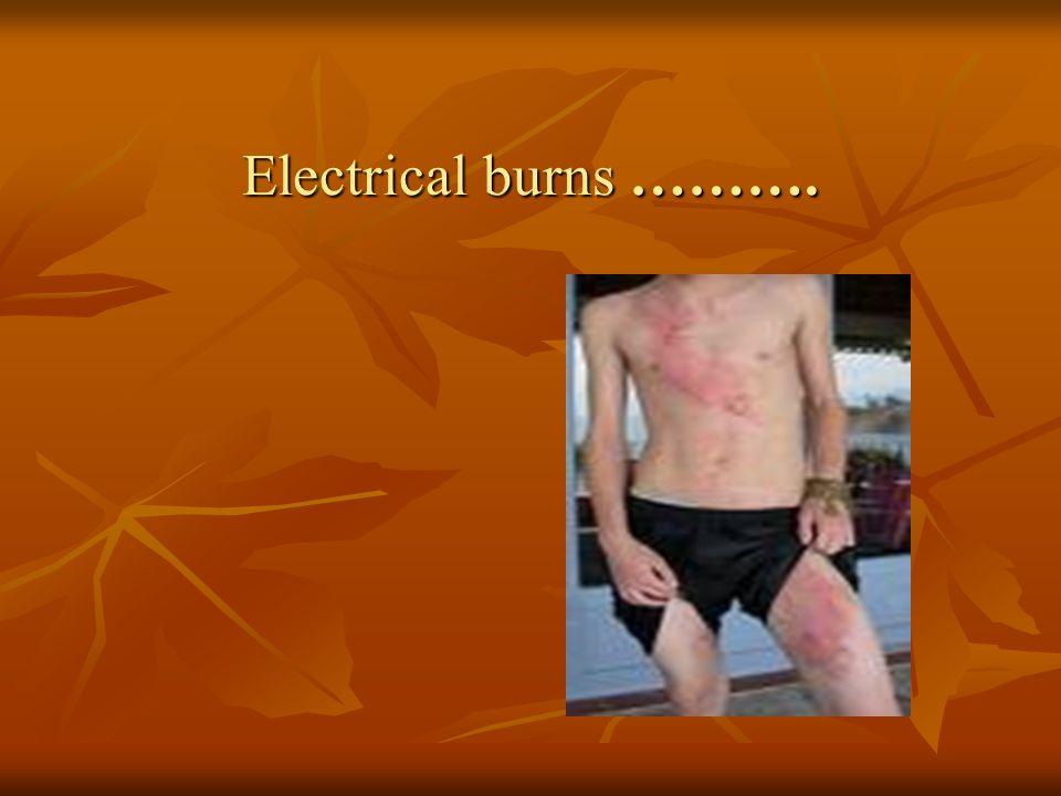 Electrical burns ………. Electrical burns ……….