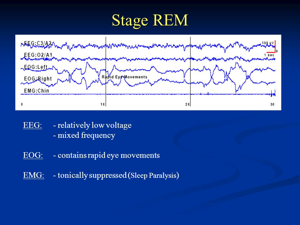 Stage REM EEG:- relatively low voltage - mixed frequency EOG:- contains rapid eye movements EMG:- tonically suppressed ( Sleep Paralysis )