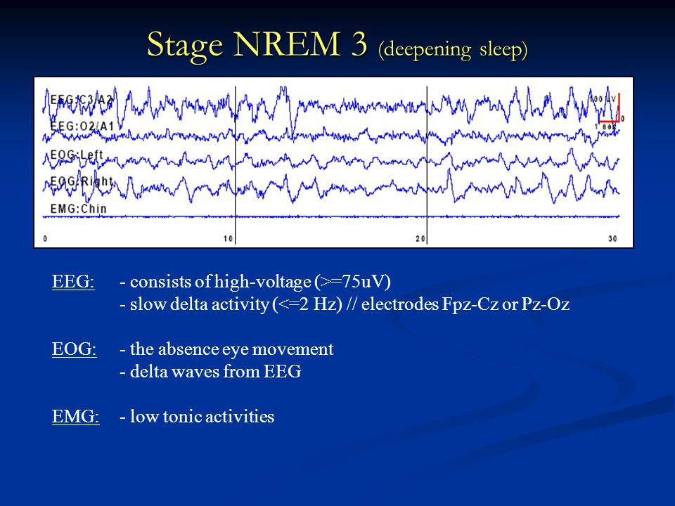 Stage NREM 3 (deepening sleep) EEG:- consists of high-voltage (>=75uV) - slow delta activity (<=2 Hz) // electrodes Fpz-Cz or Pz-Oz EOG:- the absence